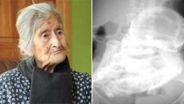 idosa-92-anos-feto-mumificado-tricurioso-1