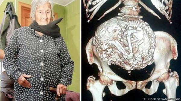 idosa-92-anos-feto-mumificado-tricurioso-2