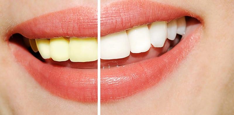 Como E Feito Clareamento Dental Tricurioso 1 Tricurioso