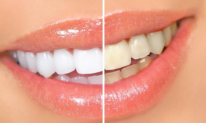 Como E Feito O Clareamento Dental Tricurioso