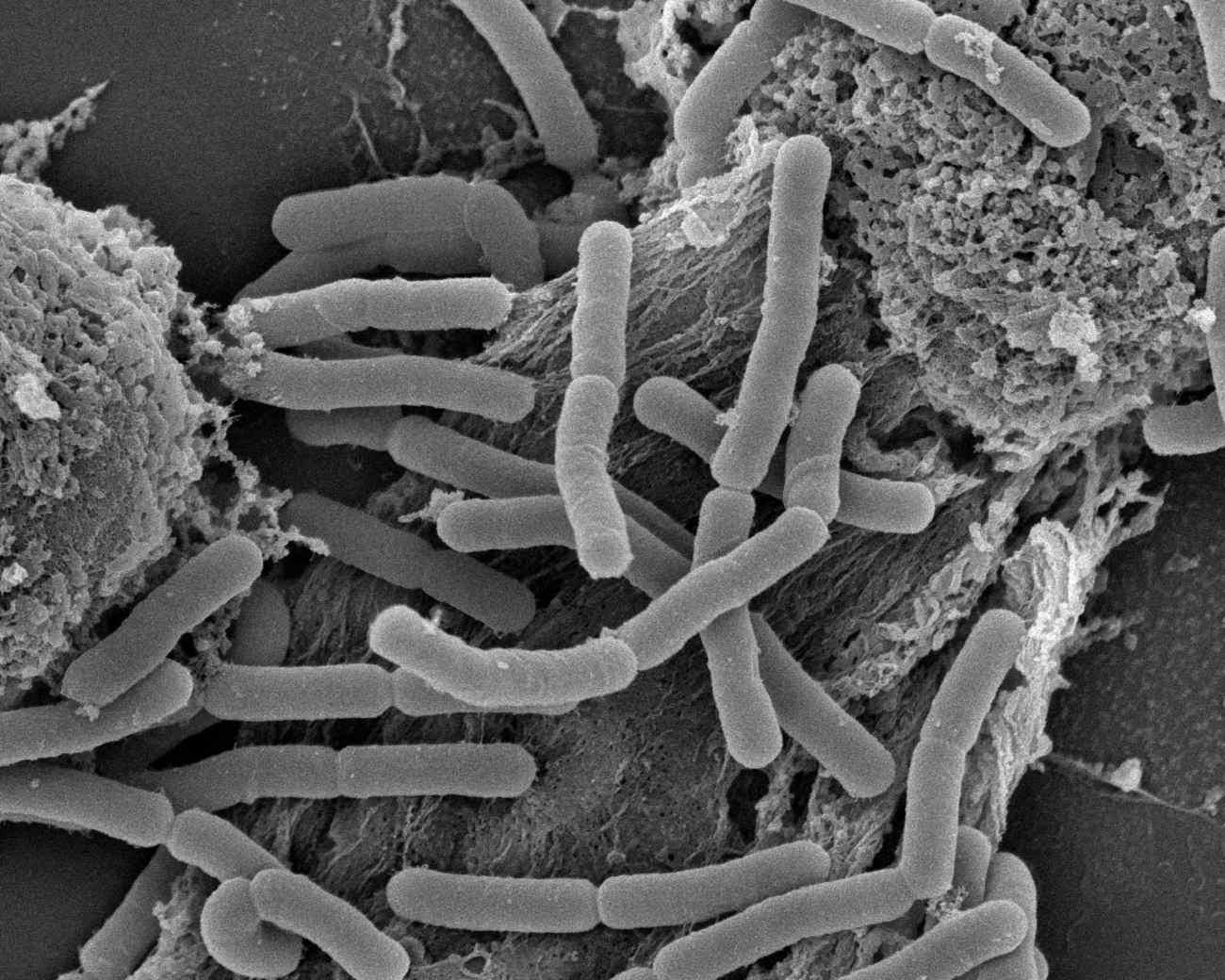 O que são lactobacilos?