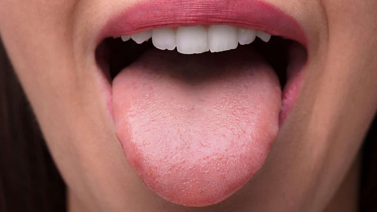 Por que a língua fica branca?