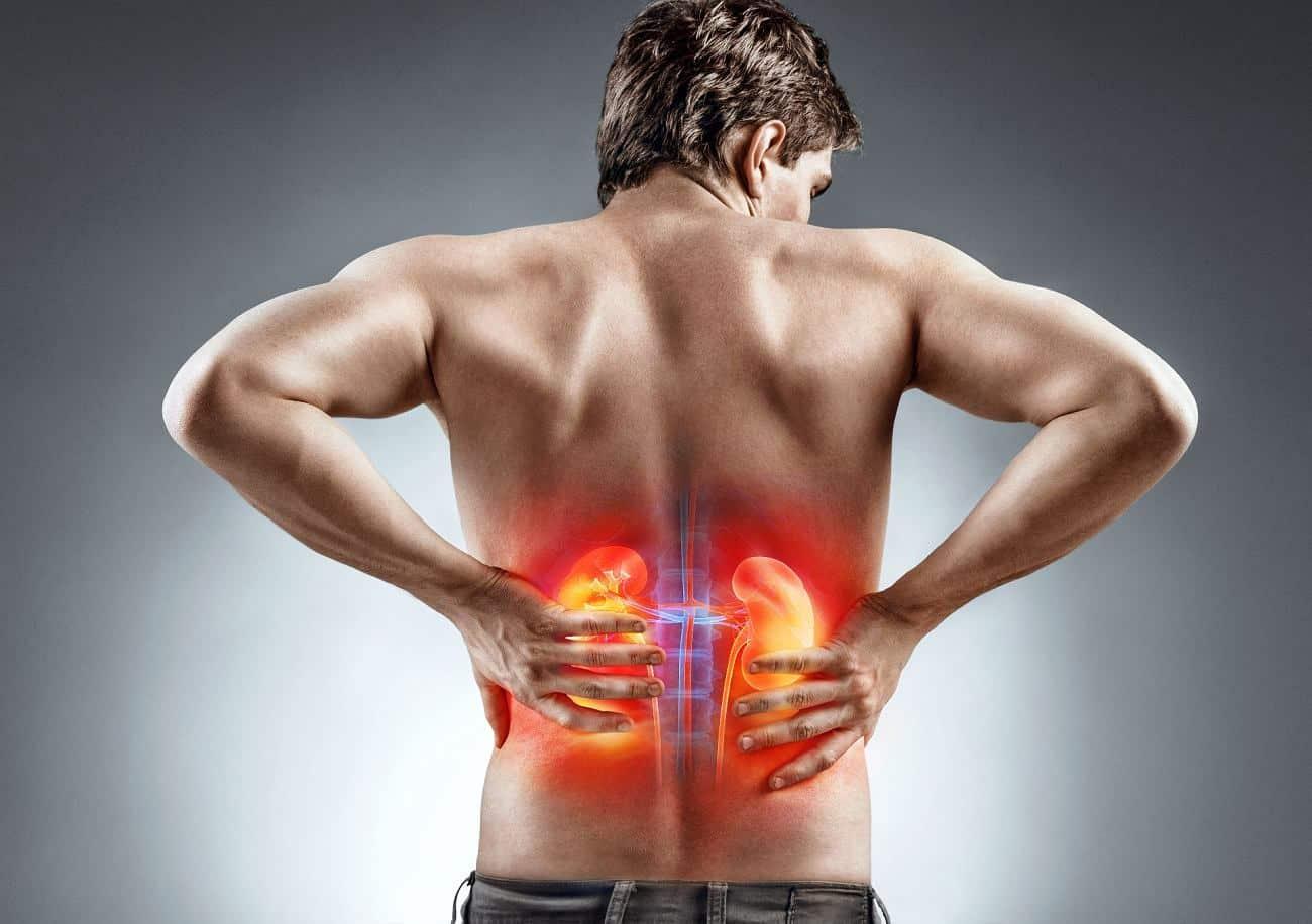 Como se formam as pedras nos rins?