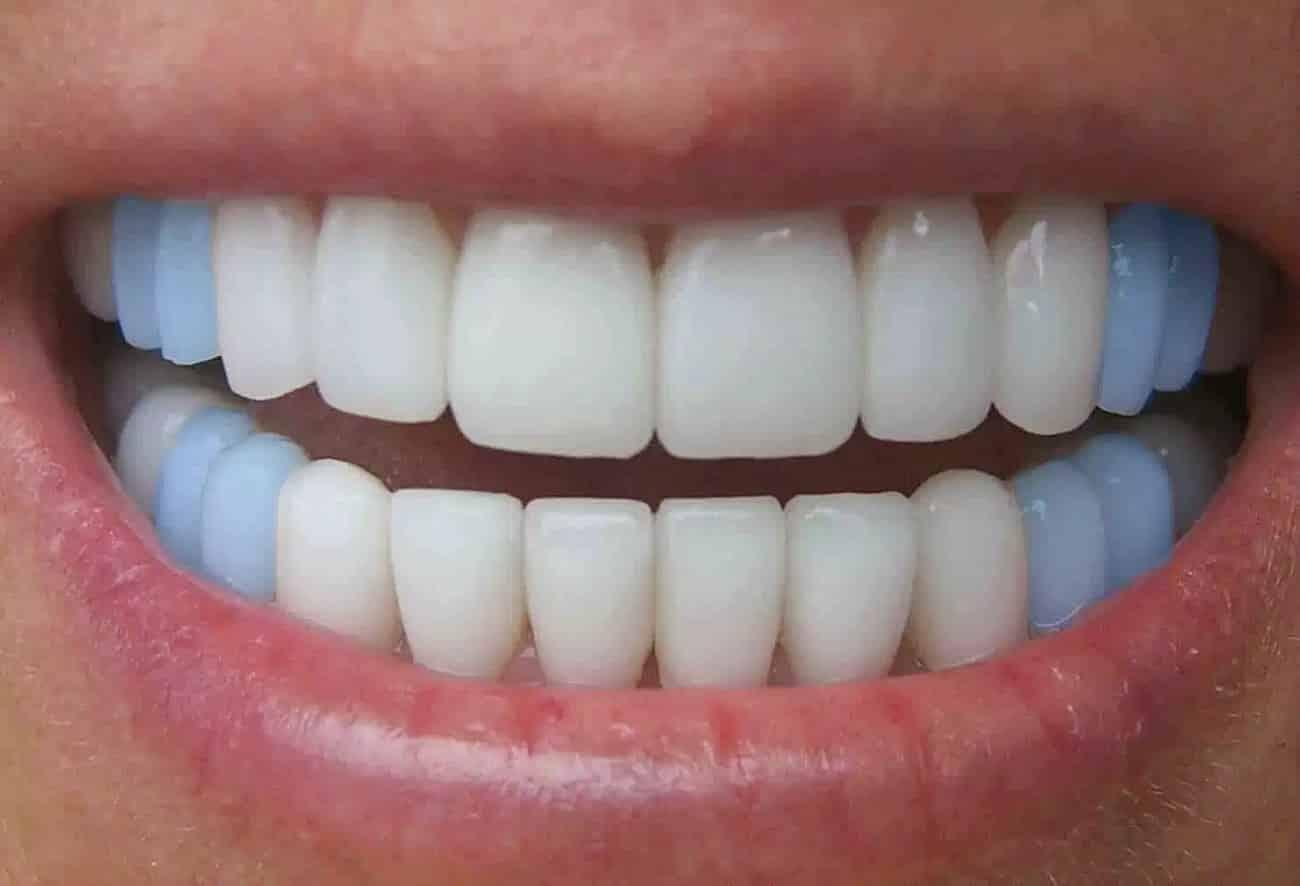Por que trocamos de dentes?